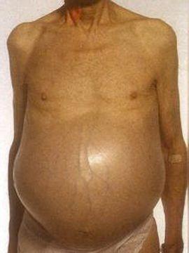 стадии цирроза печени