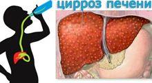 Лечение гепатоза в домашних условиях