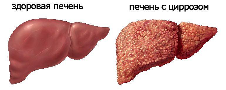 Вакцина прививка гепатит а