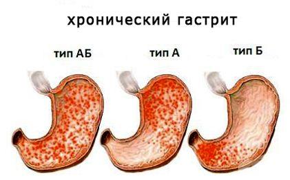 Алкагольный хр гастрит