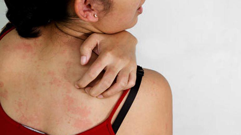сонник аллергия на теле у себя
